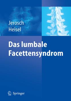Das lumbale Facettensyndrom von Faustmann,  P.M., Heisel,  Jürgen, Jerosch,  Jörg, Schippers,  N.