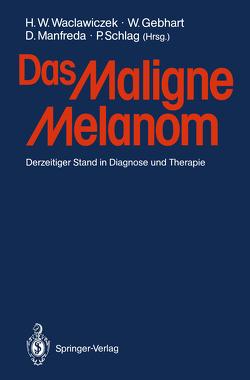 Das Maligne Melanom von Gebhart,  W., Manfreda,  Dieter, Schlag,  P., Waclawiczek,  Hans W.