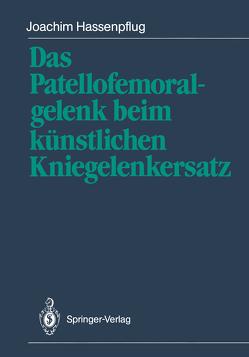 Das Patellofemoralgelenk beim künstlichen Kniegelenkersatz von Blauth,  W., Hassenpflug,  Joachim