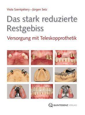 Das stark reduzierte Restgebiss von Setz,  Jürgen, Szentpétery,  Viola