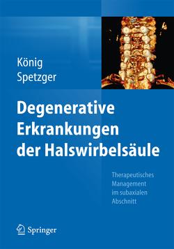 Degenerative Erkrankungen der Halswirbelsäule von König,  Stefan Alexander, Spetzger,  Uwe