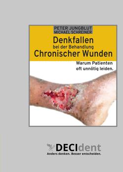 Denkfallen bei der Behandlung chronischer Wunden von Jungblut,  Peter, Schreiner,  Michael