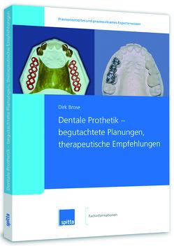 Dentale Prothetik – begutachtete Planungen, therapeutische Empfehlungen von Brose,  Dirk