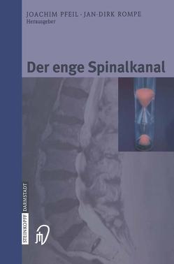 Der enge Spinalkanal von Pfeil,  Joachim, Rompe,  Jan-Dirk