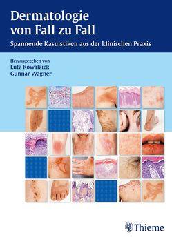 Dermatologie von Fall zu Fall von Kowalzick,  Lutz, Wagner,  Gunnar