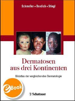 Dermatosen aus drei Kontinenten von Bendick,  Christoph, Schmeller,  Wilfried, Stingl,  Peter