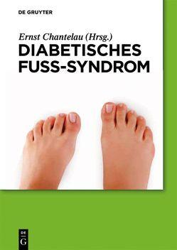 Diabetische Füße und ihre Behandlung von Chantelau,  Ernst