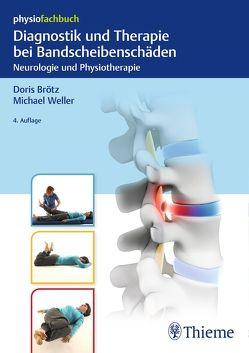 Diagnostik und Therapie bei Bandscheibenschäden von Brötz,  Doris, Weller,  Michael