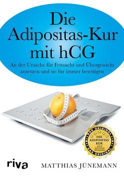 Die Adipositas-Kur mit hCG von Jünemann,  Matthias
