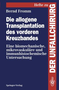 Die allogene Transplantation des vorderen Kreuzbandes von Fromm,  Bernd