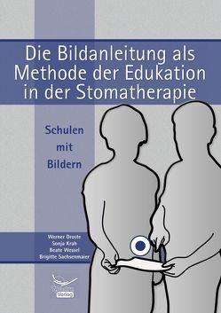 Die Bildanleitung als Methode der Edukation in der Stomatherapie von Droste,  Werner, Krah,  Sonja, Sachsenmaier,  Brigitte, Wessel,  Beate