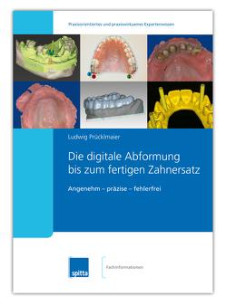 Die digitale Abformung bis zum fertigen Zahnersatz von Prücklmaier,  Ludwig