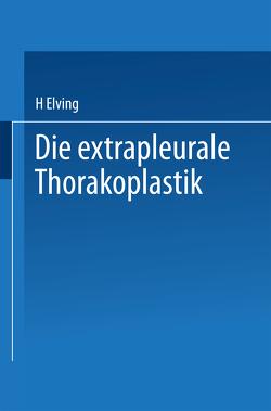 Die extrapleurale Thorakoplastik von Elving,  H.