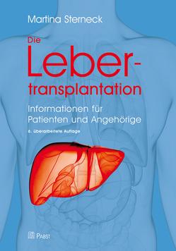 Die Lebertransplantation von Sterneck,  Martina