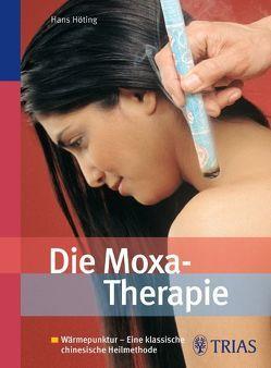 Die Moxa-Therapie von Höting,  Hans Gerhard