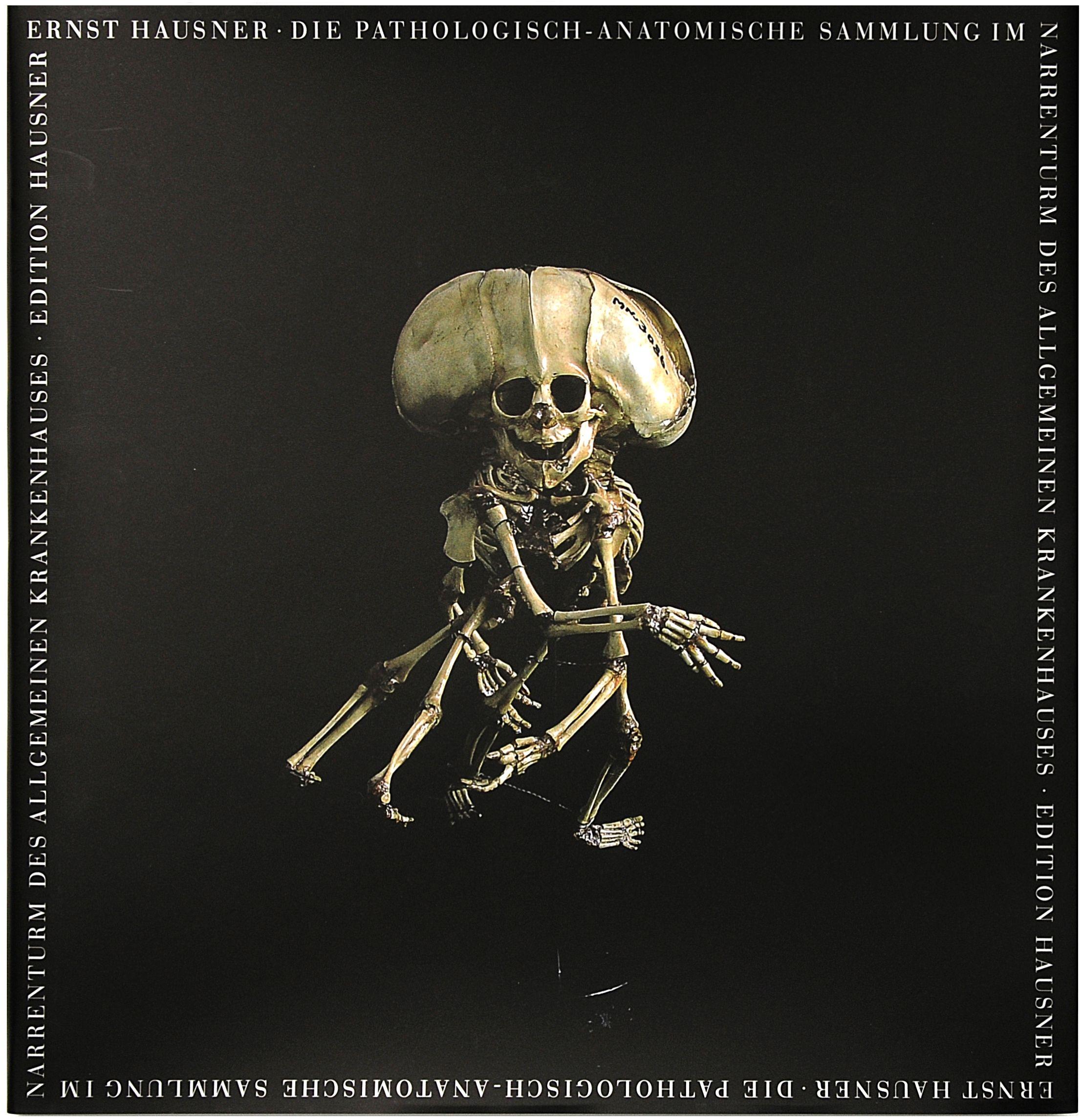 Die Pathologisch-Anatomische Sammlung im Narrenturm des Alten Allgemei