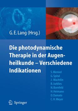 Die photodynamische Therapie in der Augenheilkunde – Verschiedene Indikationen von Lang,  Gabriele E.