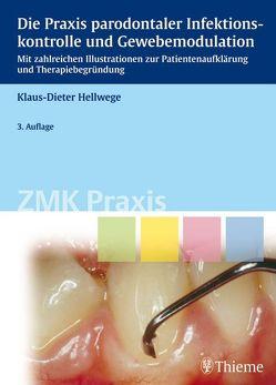 Die Praxis parodontaler Infektionskontrolle und Gewebemodulation von Hellwege,  Klaus-Dieter