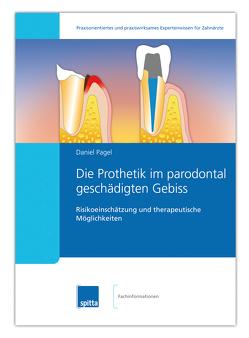 Die Prothetik im parodontal geschädigten Gebiss von Pagel,  Daniel