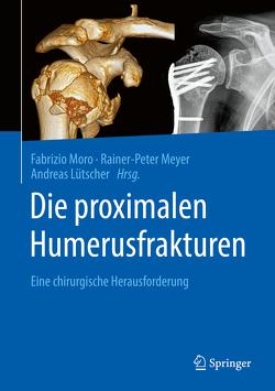 Die proximalen Humerusfrakturen von Lütscher,  Andreas, Meyer,  Rainer-Peter, Moro,  Fabrizio
