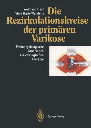 Die Rezirkulationskreise der primären Varikose von Hach,  Wolfgang, Hach-Wunderle,  Viola
