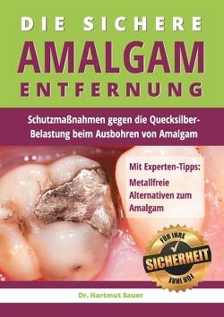 Die sichere Amalgam-Entfernung von Sauer,  Hartmut