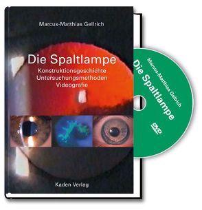 Die Spaltlampe von Gellrich,  Marcus-Matthias