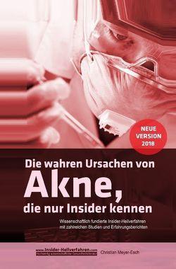 Die wahren Ursachen von Akne, die nur Insider kennen von Meyer-Esch,  Christian