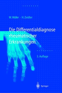 Differentialdiagnose rheumatischer Erkrankungen von Mueller,  Wolfgang, Müller,  W., Schilling,  F., Wagenhäuser,  F.J., Zeidler,  Henning
