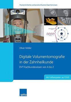 Digitale Volumentomografie in der Zahnheilkunde von Müller,  Oliver