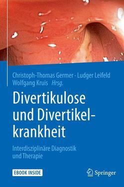 Divertikulose und Divertikelkrankheit von Germer,  Christoph-Thomas, Kruis,  Wolfgang, Leifeld,  Ludger