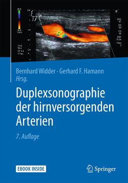 Duplexsonographie der hirnversorgenden Arterien von Hamann,  Gerhard, Widder,  Bernhard