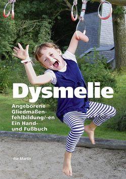 Dysmelie Angeborene Gliedmaßenfehlbildung/-en von Brugger,  Peter, Martin,  Ilse