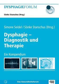 Dysphagie – Diagnostik und Therapie von Seidel,  Simone, Stanschus,  Sönke