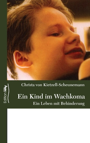 Ein Kind im Wachkoma von Kietzell-Scheunemann,  Christa von
