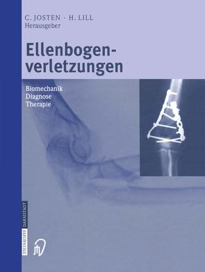 Ellenbogenverletzungen von Josten,  C., Lill,  H.
