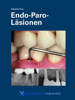 Endo-Paro-Läsionen von Foce,  Edoardo