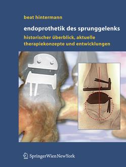 Endoprothetik des Sprunggelenks von Hintermann,  Beat