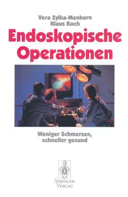 Endoskopische Operationen von Koch,  Klaus, Zylka-Menhorn,  Vera