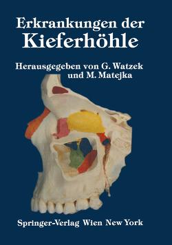 Erkrankungen der Kieferhöhle von Matejka,  M., Watzek,  G.