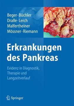 Erkrankungen des Pankreas von Beger,  Hans G., Büchler,  Markus W., Dralle,  Henning, Lerch,  Markus M., Malfertheiner,  Peter, Mössner,  Joachim, Riemann,  Jürgen F