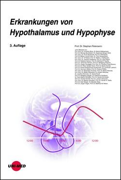 Erkrankungen von Hypothalamus und Hypophyse von Petersenn,  Stephan