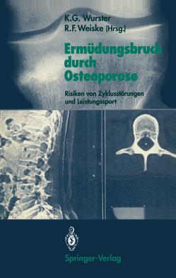Ermüdungsbruch durch Osteoporose von Weiske,  Roman F., Wurster,  Kurt G.