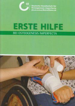 Erste Hilfe bei Osteogenesis imperfecta von David,  Christoph, Döme,  Harald, Grabartzik,  Sonja, Henn,  Karl, Hippmann,  Gero