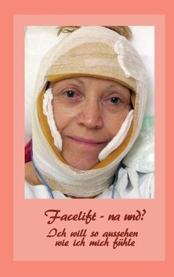 Facelift – na und? von Fischer,  Ute, Siegmund,  Bernhard