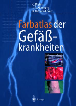 Farbatlas der Gefäßkrankheiten von Allenberg,  J.-R., Diehm,  Curt, Nimura-Eckert,  Keiko