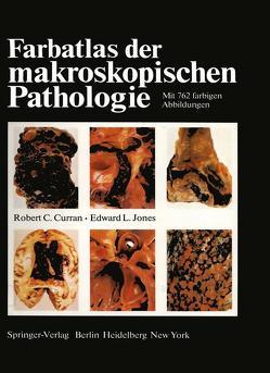 Farbatlas der makroskopischen Pathologie von Bürki,  K., Cottier,  H., Curran,  R.C., Jones,  E. L., Roos,  B., Zimmermann,  A