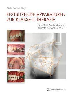 Festsitzende Apparaturen zur Klasse-II-Therapie von Baxmann,  Martin