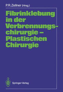 Fibrinklebung in der Verbrennungschirurgie — Plastischen Chirurgie von Zellner,  Peter R.