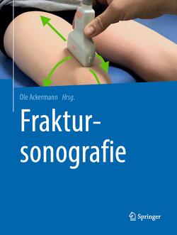 Fraktursonografie von Ackermann,  Ole